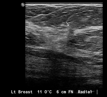 Small Breast Cancer Radiology Case Radiopaedia Org