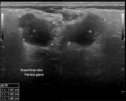 pleomorphic adenoma radiopaedia case Prosztata hiperplázia kezelési módszerei
