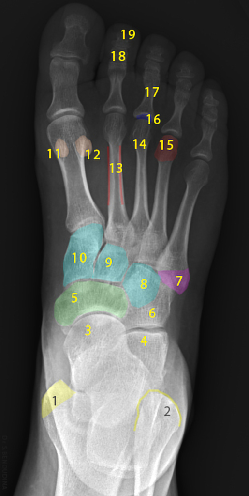 Normal Radiographic Anatomy Of The Foot Radiology Case Radiopaedia Org