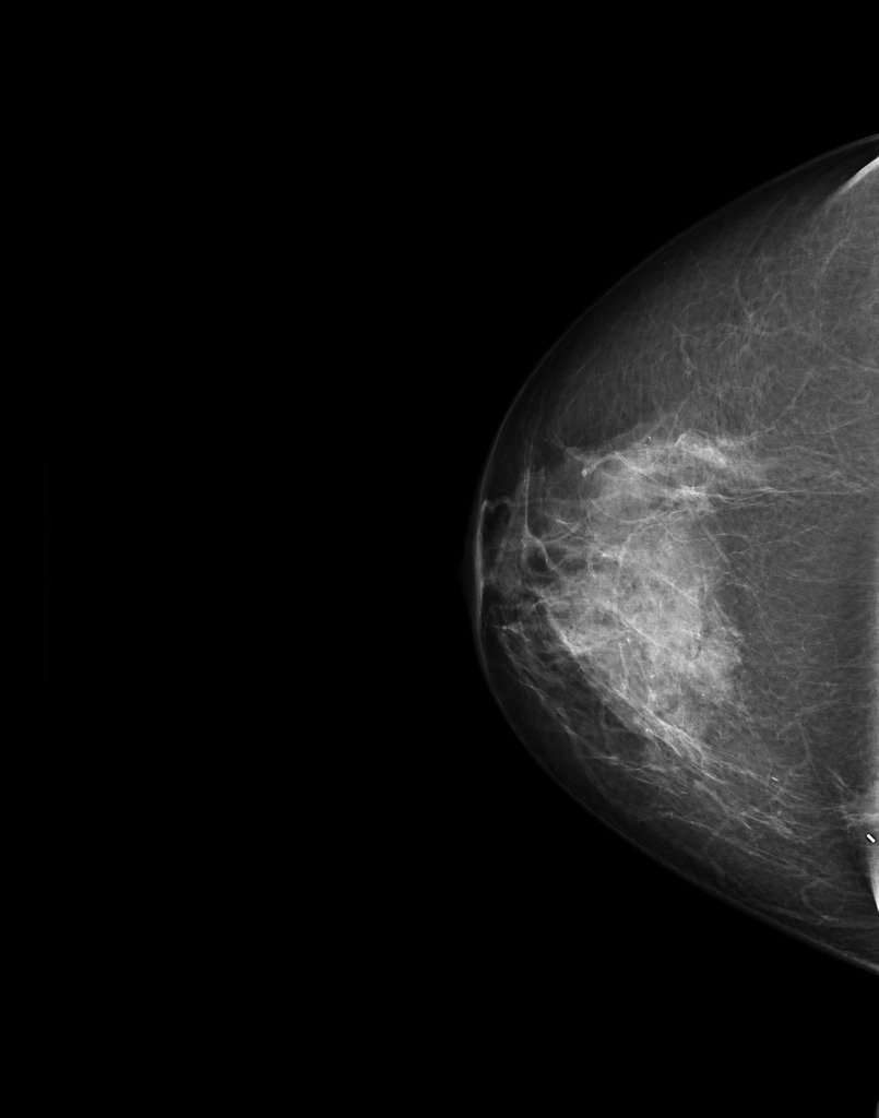 intraductal papilloma mammogram)
