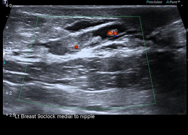 Multiple intraductal papillomatosis. Boala Mingz (Cystadenopapilloma) a glandei mamare