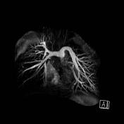 Coronal pulmonary...