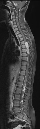 NF 2  whole spine