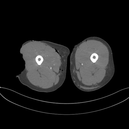 Lower Limb Degloving Soft Tissue Injury Radiology Case Radiopaedia Org
