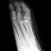 Osteopoikilosis