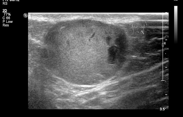 Epidermal inclusion cyst of the skin | Radiology Case ...