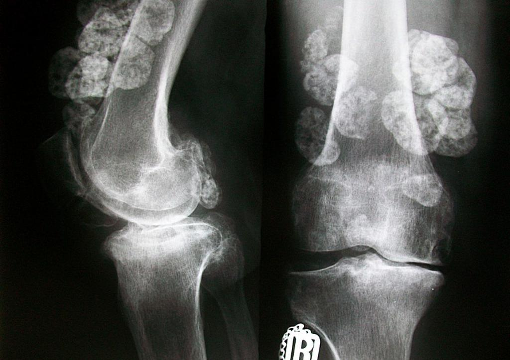 Primary synovial chondromatosis of knee with both intra-articular ...