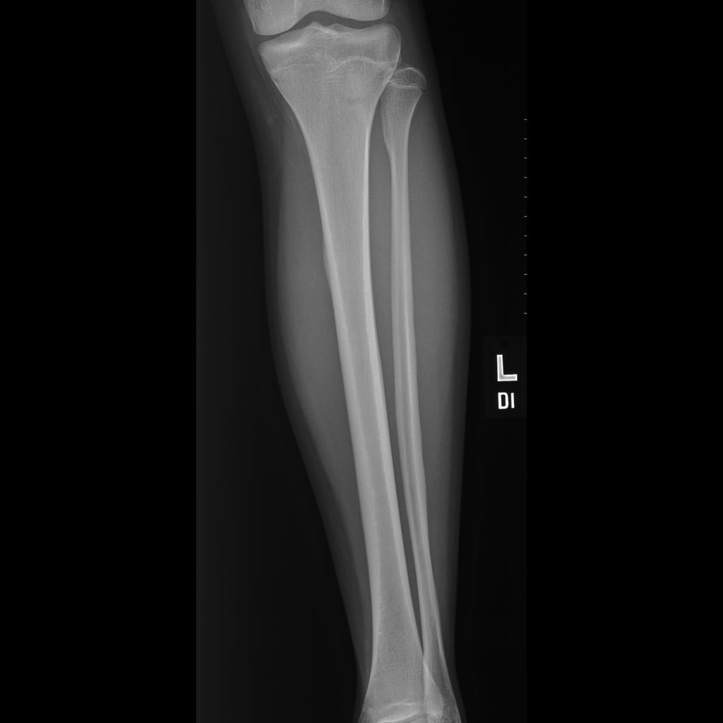 Medial Tibial Stress Syndrome Radiology Case Radiopaedia Org