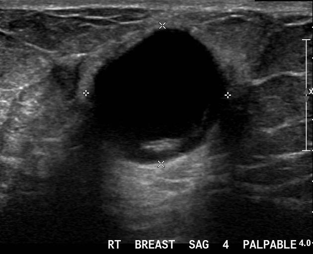 Carcinoma Breast Complex Cyst Radiology Case Radiopaedia Org