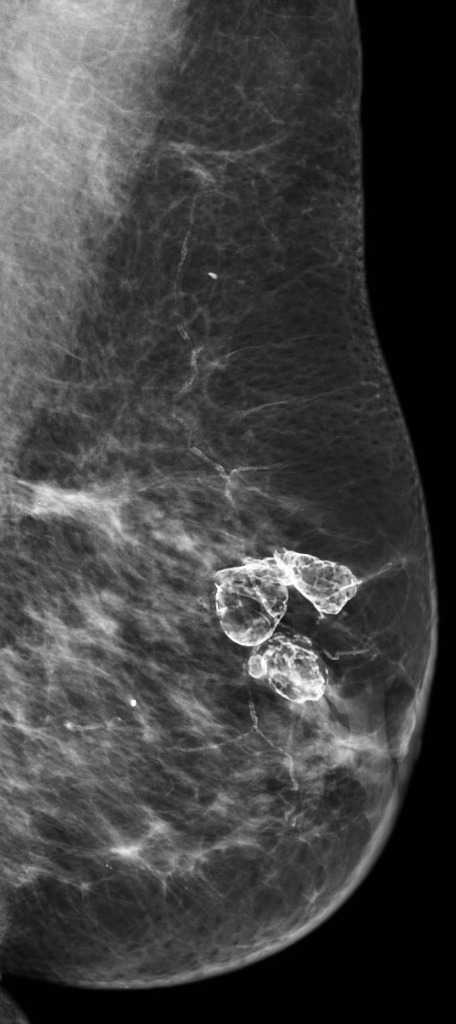 ultrasound findings fat necrosis breast