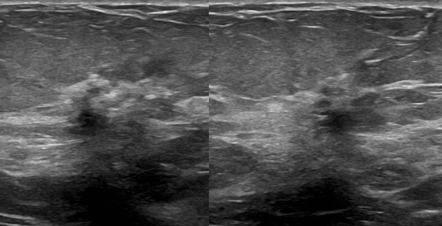 The ultrasound im...