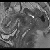 Hourglass lesion T2