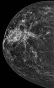CC view right breast