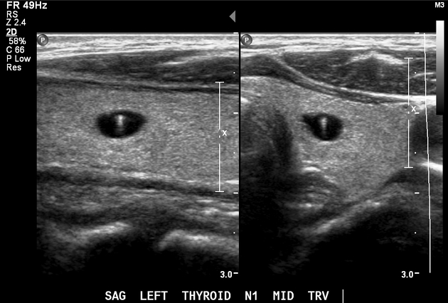 Inspissated Colloid In A Thyroid Nodule Radiology Case