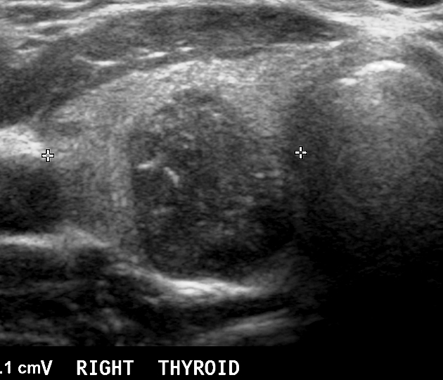 Microcalcifications In A Thyroid Nodule Radiology Case