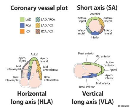 Cardiac segmentation model   Radiology Reference Article ...