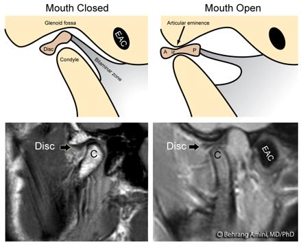 Temporomandibular Joint Mri Anatomy Radiology Case Radiopaedia Org