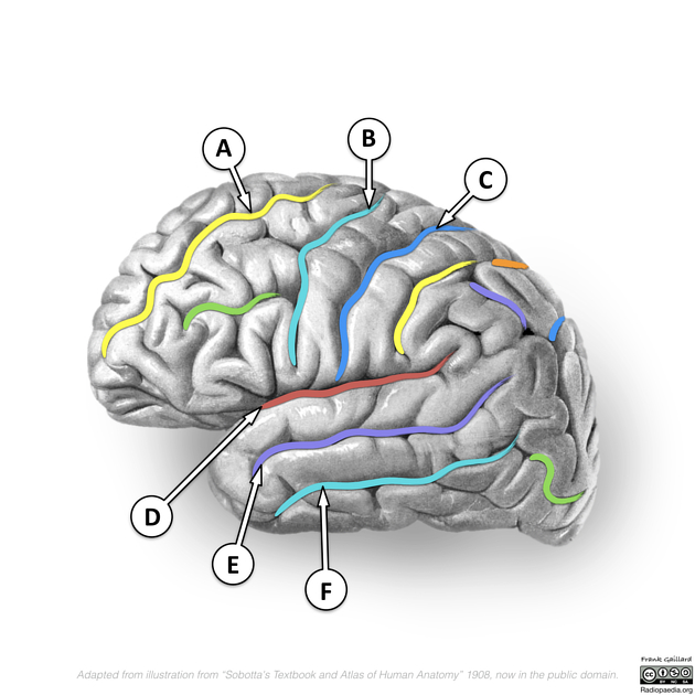 Postcentral Gyrus Radiology Reference Article Radiopaedia Org A gyrus of the parietal lobe located just posterior to the central sulcus, lying parallel to the precentral gyrus of the temporal lobe, and comprising the somatosensory. postcentral gyrus radiology reference
