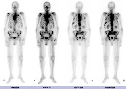 Prostatitis méhek A fájdalom kalapálja a prosztatát