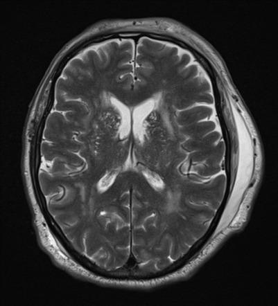 Degloving Soft Tissue Injury Radiology Reference Article Radiopaedia Org