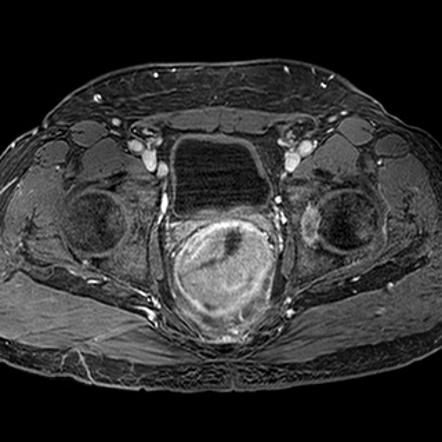 Rectal Cancer Radiology Reference Article Radiopaedia Org
