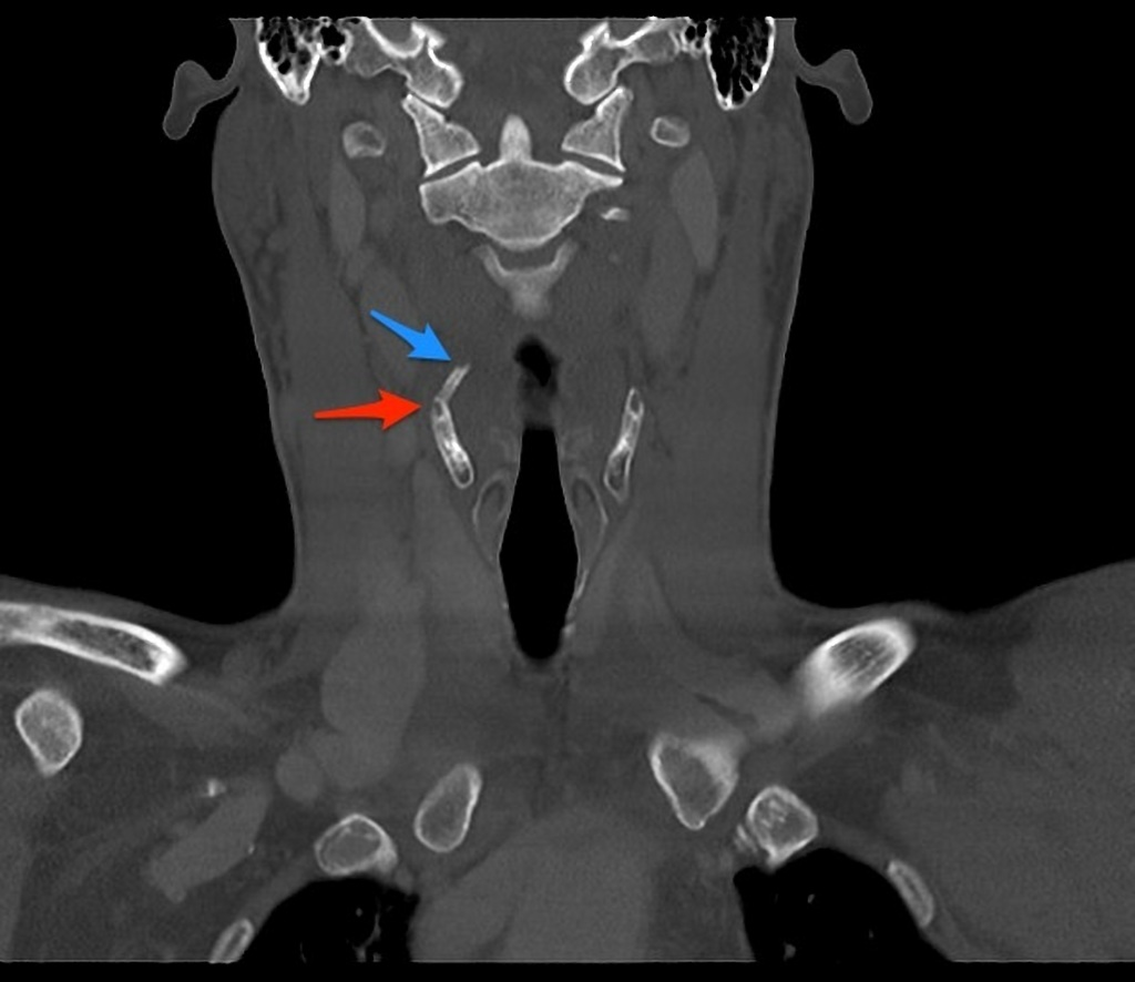 Thyroid Cartilage Fracture Radiology Case Radiopaedia Org