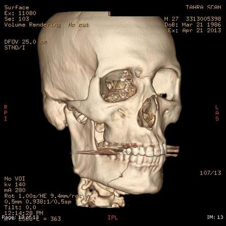 Viewing playlist: Trauma Radiology Course: Face | Radiopaedia.org