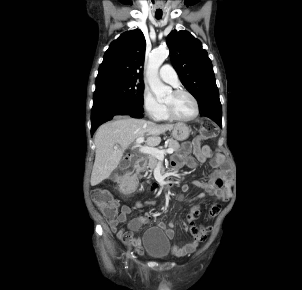Transverse Colon Cancer With Fistula To Duodenum And Gallbladder Image Radiopaedia Org