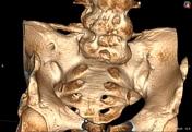 Sarco-iliac joint