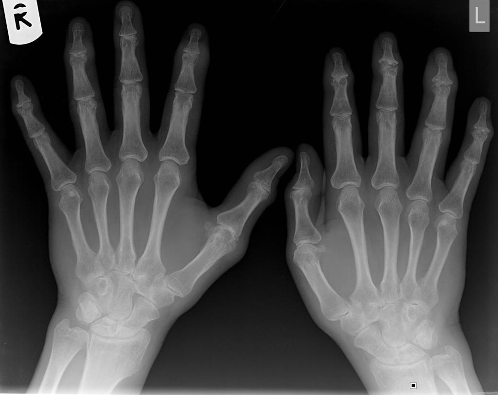 Psoriatic Arthritis Radiology Case Radiopaedia Org