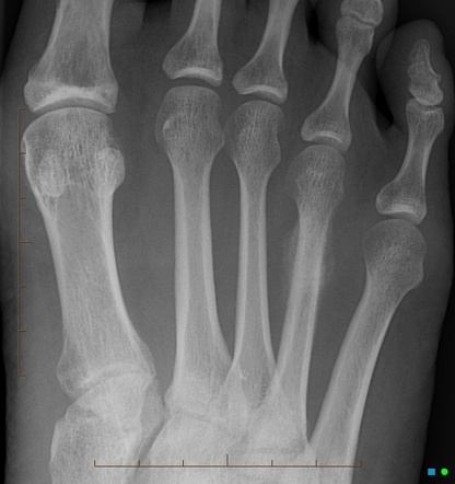 Stress Fracture Radiology Reference Article Radiopaedia Org