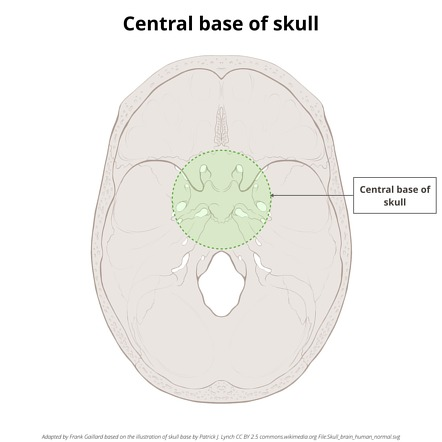Central Base Of Skull Radiology Reference Article Radiopaedia Org To complete the exposure of the petroclival synchondrosis, i rotate the petrous ica anteriorly to facilitate drilling the bone along the medial carotid wall. central base of skull radiology