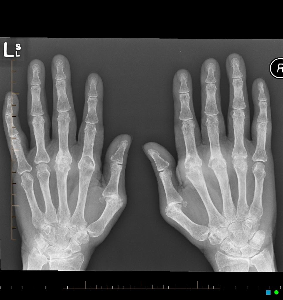 a térd lábainak ízületei fájnak mit kell tenni térdízületi alternatív kezelés