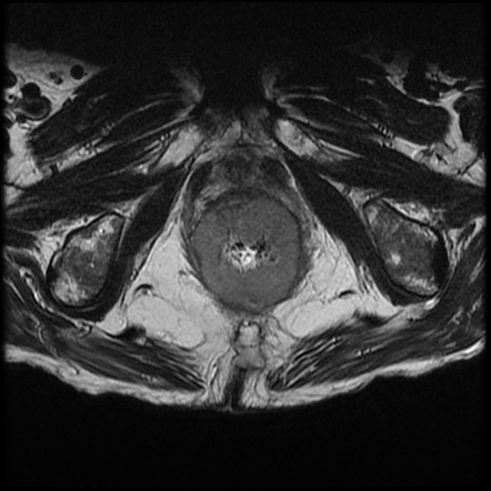 Anal Cancer Radiology Reference Article Radiopaedia Org