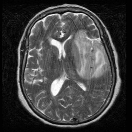 Herpes Simplex Encephalitis Radiology Reference Article Radiopaedia Org