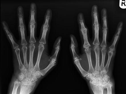 rheumatoid arthritis x ray stages