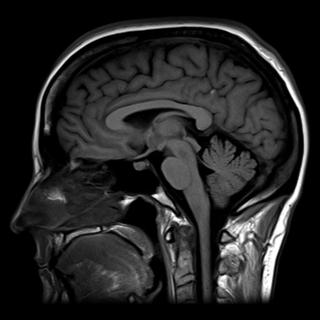 Image result for sagittal view of brain mri