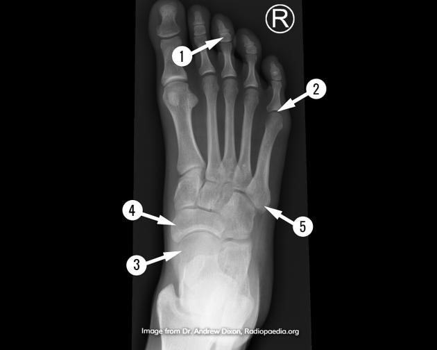 Tarsal Bones Radiology Reference Article Radiopaedia Org