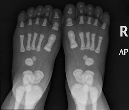 Osteopetrosis  Feet