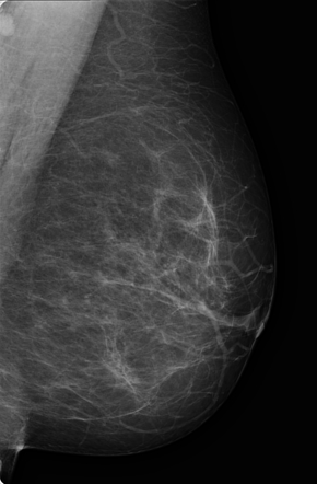 Intraductal papilloma inverted nipple,