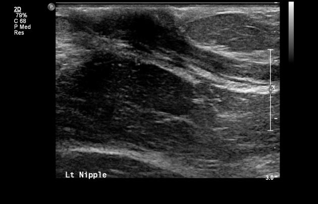 intraductal papilloma inverted nipple