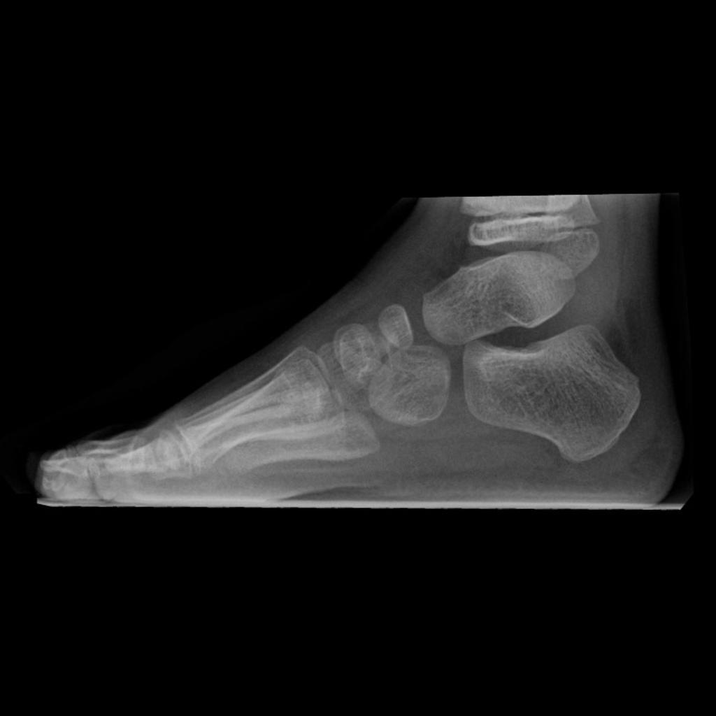 Foot Angles Lateral Weightbearing Foot Radiology Case Radiopaedia Org