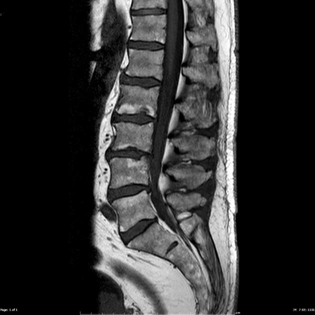 Spinal dural calcification | Radiology Case | Radiopaedia.org