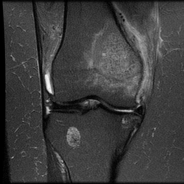 Breast Cancer Metastasis Femur Mri Radiology Case