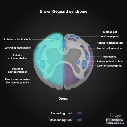 Brown Sequard Syndrome Radiology Reference Article Radiopaedia Org