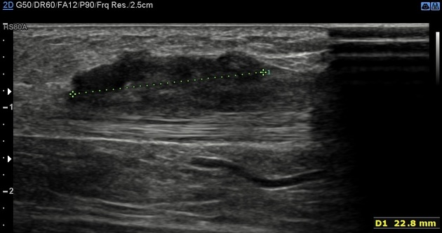 Rheumatoid Nodules Of Paratenon Radiology Case Radiopaedia Org
