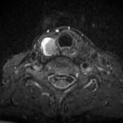 Thyroid papillary...