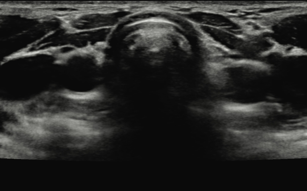 Ectopic Thyroid Gland Radiology Case Radiopaedia Org