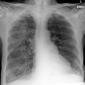 Pre-ventilation