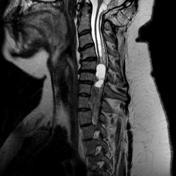 Spinal cord metas...